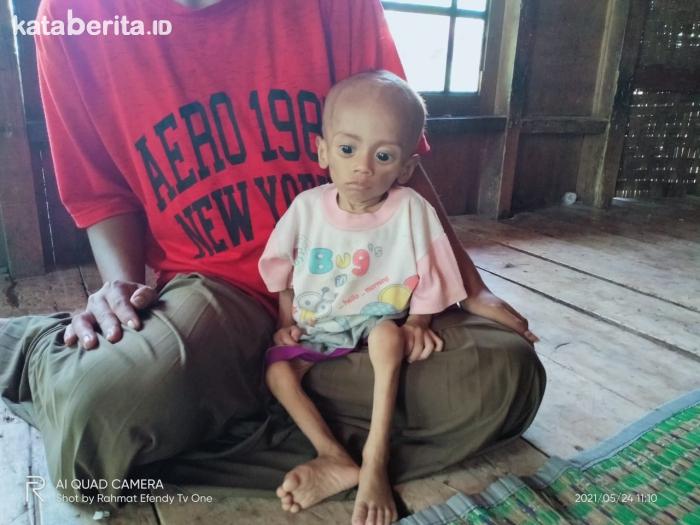 Balita dengan Gizi Buruk di Cianjur